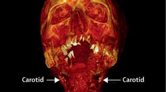 Ancient mummies reveal atherosclerosis is very likely just a part of aging