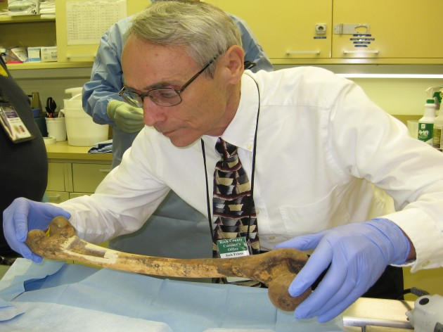 Jack Friess, Rock County Deputy Coroner, inspects a femur at the Rock County Coroner's Office from which samples were taken and sent to the Smithsonian's Museum Conservation Institute for analysis. (Image courtesy Rock County Coroner's Office)