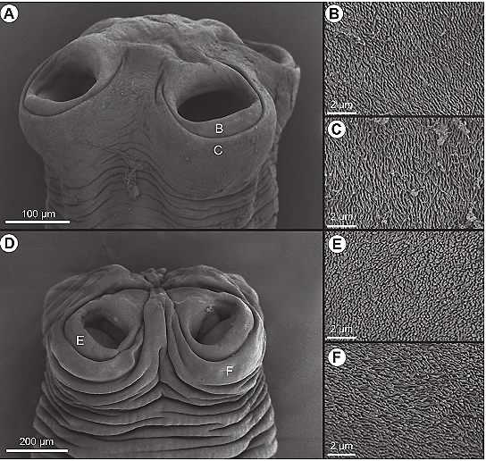 "These scanning electron microscope images show the anterior end or scolex of the tapeworms ""Anonchotaenia brasiliensis,"" top, and ""Anonchotaenia macrocephala."" The worms use these suckers to attach itself to the host's intestinal wall."