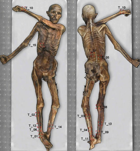 Ancient Ink: Iceman Otzi Has World's Oldest Tattoos