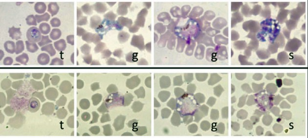 Malaria parasites contained in blood smears