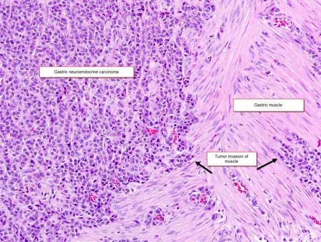 histology slide of stomach tissue