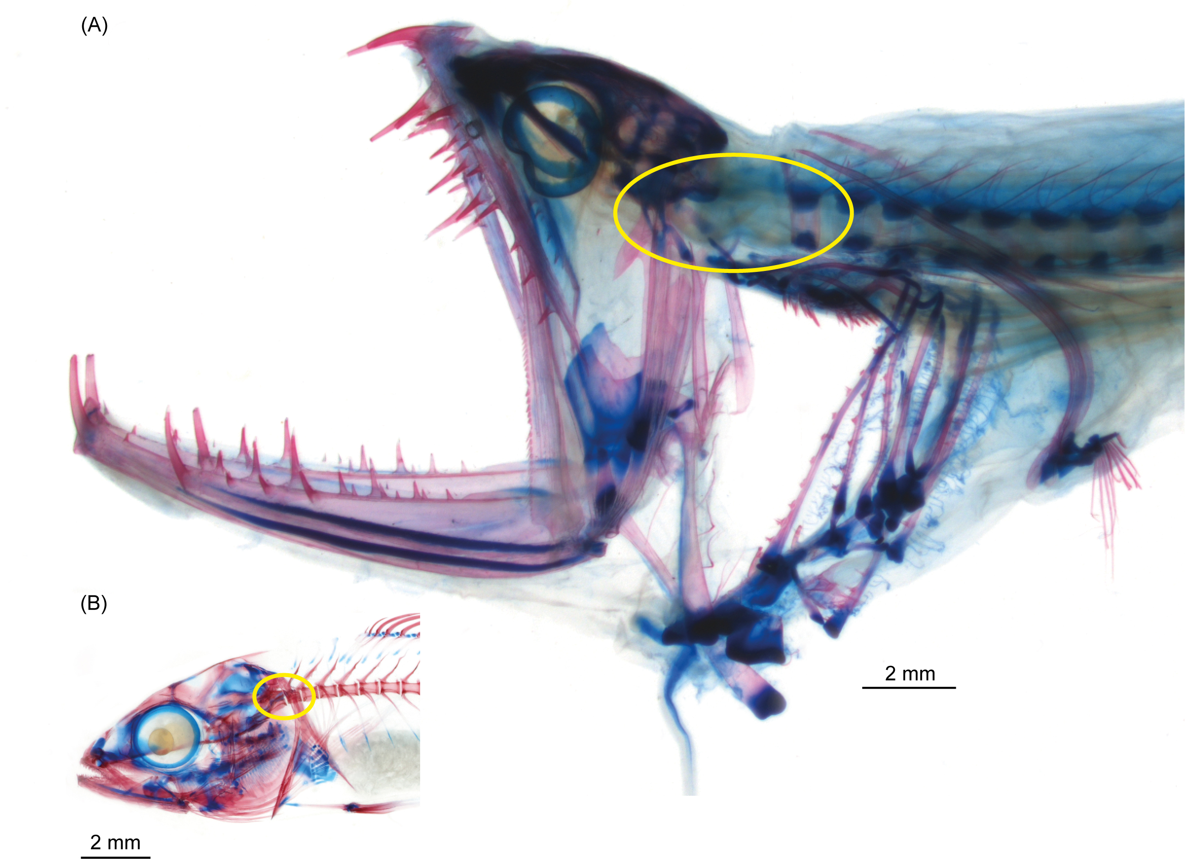 Odd Anatomy Flexible Joint Between Skull And Spine Allow Dragonfish