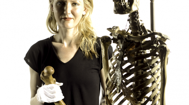 Sabrina Sholts, Smithsonian research anthropologist and curator of physical anthropology, with a reference skeleton and a femur from an individual who suffered from rickets. [Terry Collection P000826-0]